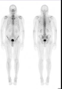 Knochen2